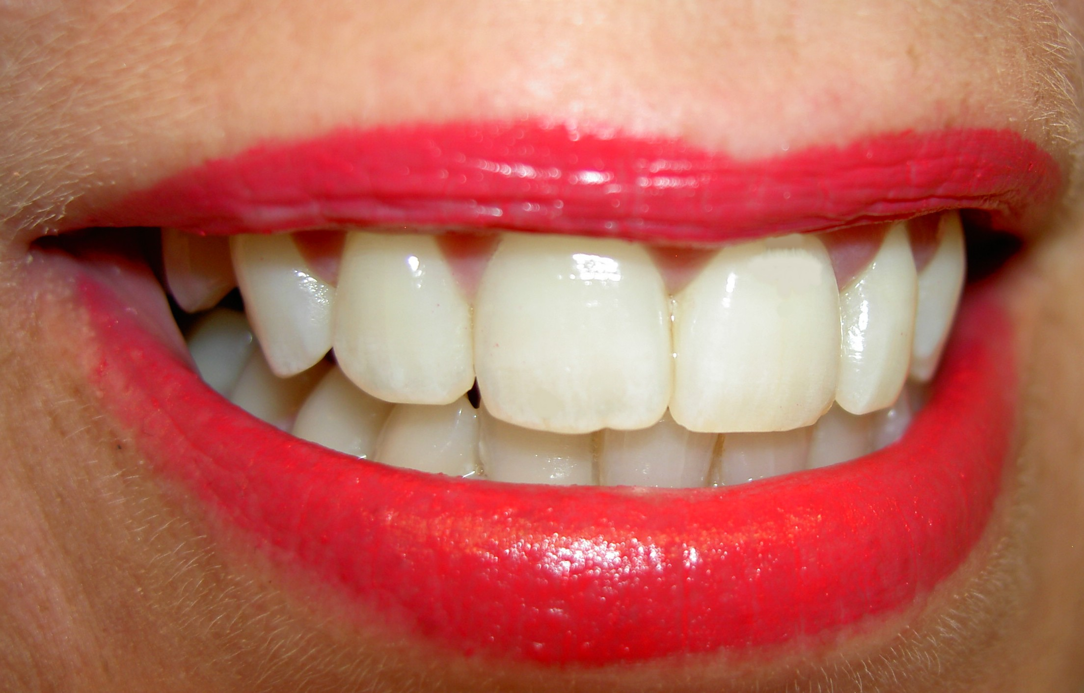 Weiße Zähne für einen perfekten ersten Eindruck